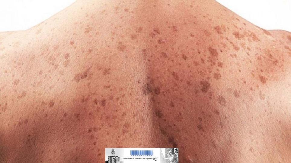 Prevención de Cáncer en la piel